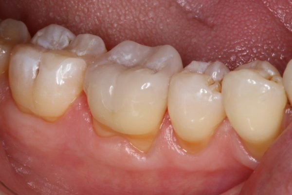 OVC3 Case study treating patient cracked tooth syndrome one visit after from side